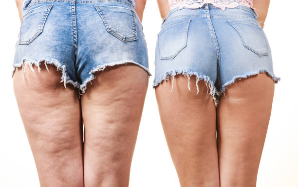 cellulite causes before after